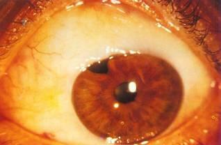 glaucomul este posibil să restabilească vederea cu)