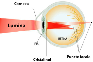 tulburări vizuale cu astigmatism)